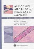 Gleason Grading of Prostate Cancer A Contemporary Approach