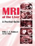 MRI of the Liver A Practical Guide