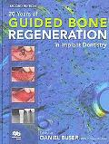 20 Years of Guided Bone Regeneration in Implant Denistry
