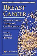 Breast Cancer Molecular Genetics, Pathogenesis, and Therapeutics