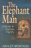 Elephant Man A Study in Human Dignity