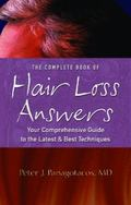 Complete Book Of Hair Loss Answers Your Comprehensive Guide To The Latest And Best Techniques