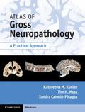 Atlas of Gross Neuropathology with CD : A Practical Approach