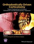 Orthodontically Driven Corticotomy