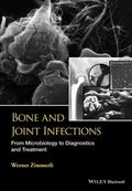 Bone and Joint Infections : From Microbiology to Diagnostics and Treatment