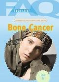 Frequently Asked Questions About Bone Cancer
