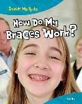How Do Braces Work?: Teeth (Inside My Body)