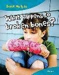 What Happens to Broken Bones? : Bones