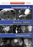 Fundamentals of Body MRI: Expert Consult- Online and Print (Fundamentals of Radiology)