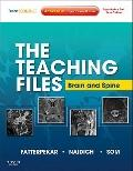 Teaching Files: Brain and Spine Imaging : Expert Consult - Online and Print