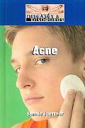 Acne (Diseases and Disorders)