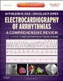 Electrocardiography of Arrhythmias: A Comprehensive Review: A Companion to Cardiac Electroph...