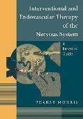 Interventional and Endovascular Therapy of the Nervous System: A Practical Guide
