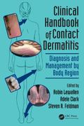Clinical Handbook of Contact Dermatitis : Diagnosis and Management by Body Region