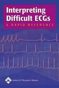 Interpreting Difficult ECGs A Rapid Reference
