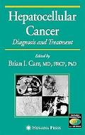 Hepatocellular Cancer Diagnosis and Treatment