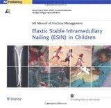 Elastic Stable Intramedullary Nailing (ESIN) in Children (AO Manual of Fracture Management S...