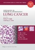 Advances in Surgical Pathology : Lung Cancer