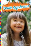 Down Syndrome (Living with)