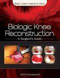 Biologic Knee Reconstruction