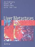 Liver Metastases