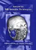 Advanced Mr Imaging Techniques