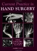 Current Practice in Hand Surgery