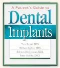 Patient's Guide to Dental Implants