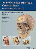Atlas of Craniomaxillofacial Osteosynthesis