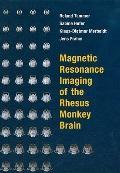 Magnetic Resonance Imaging of the Rhesus Monkey Brain