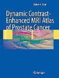 Dynamic Contrast-Enhanced MRI Atlas of Prostate Cancer