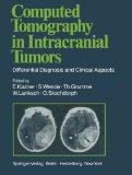 Computed Tomography in Intracranial Tumors: Differential Diagnosis and Clinical Aspects