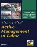 Active Management of Labor (Step By Step)