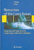 Nonunion of the Long Bones Diagnosis And Treatment With Compression-Distraction Techniques